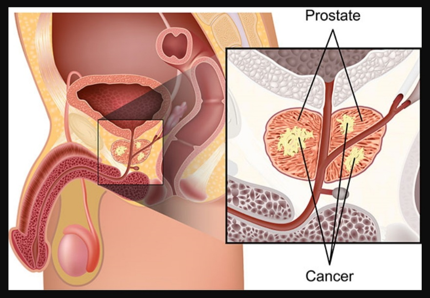 Pengobatan kanker prostat di Sunway Medical Centre